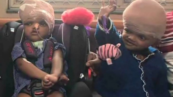 Conjoined twins Jaga, Balia discharged from AIIMS after 2 years