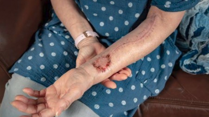 Lot to speak about: Woman gets tongue made from arm skin
