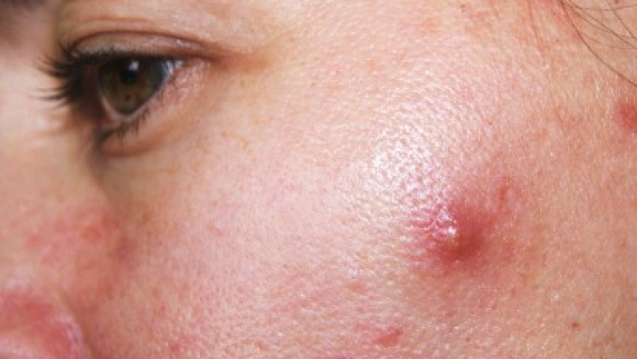 Poor dietary habits, increased stress linked with acne