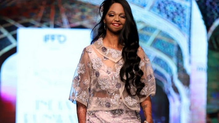 Be your own kind of beautiful: Laxmi Agarwal